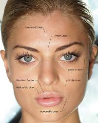 Facial filler radiance